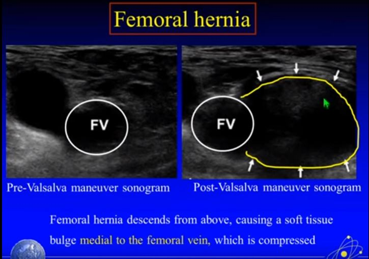 Ultrasound Imaging of Hernia Parts 1 + 2 of 4 – A YouTube Video