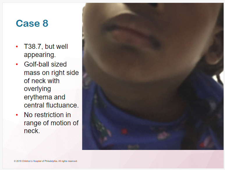 Pediatric Neck Mass From Brachial Cleft Cyst – Help From